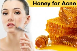honey for get rid of acne pimples