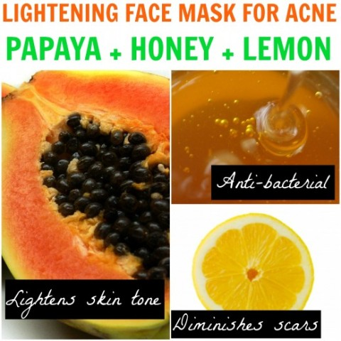 Top 10 Ways How to get rid of acne By Home Remedies
