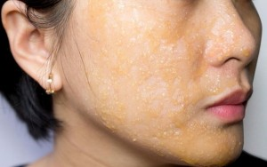how tea tree oil use for skin