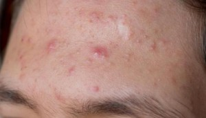 how to get rid of Acne or pimples